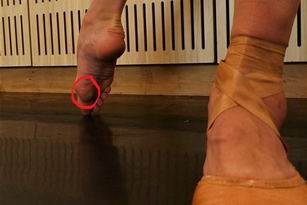 pie de bailarina de ballet